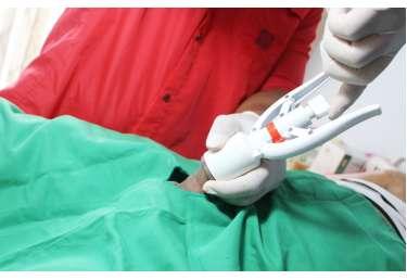 dengan-stapler-proses-khitan-33409e3442b66ba_cover.jpg